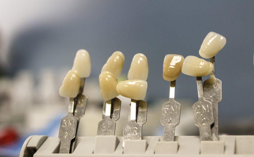 Przepiękne urodziwe zęby oraz doskonały uroczy uśmieszek to powód do płenego uśmiechu.